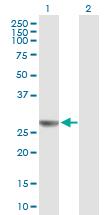 Western blot -   NUDCD3 antibody (ab89080)