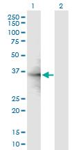 Western blot - RPL6 antibody (ab89089)