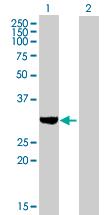 Western blot - SULT1C2 antibody (ab89090)
