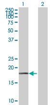 Western blot - NDUFB7 antibody (ab89092)