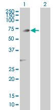 Western blot - PGM3 antibody (ab89093)