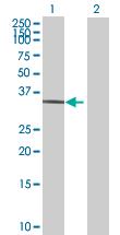 Western blot - Parvin gamma antibody (ab89094)