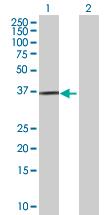 Western blot - FKSG14 antibody (ab89096)