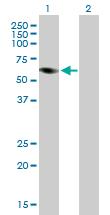 Western blot - PRAME antibody (ab89097)