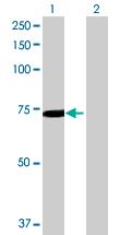 Western blot - SLC25A13 antibody (ab89098)