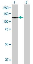 Western blot - GTF3C2 antibody (ab89113)