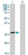 Western blot - Glutathione S Transferase kappa 1 antibody (ab89116)