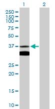 Western blot - SLC25A3 antibody (ab89117)