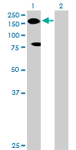 Western blot - MYBBP1A antibody (ab89121)