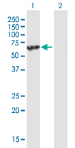 Western blot - UBAP1 antibody (ab89124)
