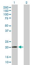 Western blot - WWOX antibody (ab89128)