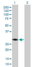 Western blot - SMNDC1 antibody (ab89131)