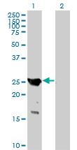 Western blot - GAJ antibody (ab89132)