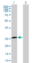 Western blot - PSMB5 antibody (ab89134)