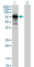 Western blot - PPP1R16A antibody (ab89135)
