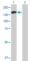 Western blot - ALPK1 antibody (ab89140)