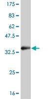 Western blot - SGK2 antibody (ab89144)