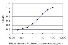 Sandwich ELISA - SGK2 antibody (ab89144)