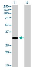 Western blot - AKR1CL2 antibody (ab89145)