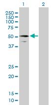 Western blot - RIPX antibody (ab89147)