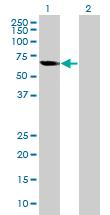 Western blot - ECM29 antibody (ab89149)
