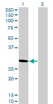 Western blot - PSME2 antibody (ab89150)