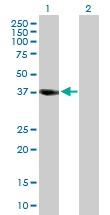 Western blot - IDH3A antibody (ab89153)