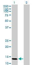 Western blot - VAMP8 antibody (ab89158)