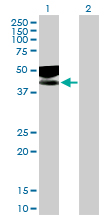 Western blot - IL1 Receptor II antibody (ab89159)