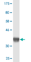 Western blot - CLLD8/SETDB2 antibody [n/a] (ab89173)