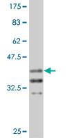 Western blot - Arx antibody (ab89178)