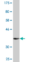 Western blot - Torc2 antibody (ab89179)