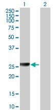 Western blot - liver Arginase antibody (ab89184)