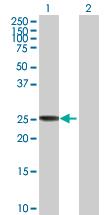 Western blot - CLIC3 antibody (ab89199)
