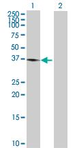 Western blot - Junctional Adhesion Molecule 1 antibody (ab89203)