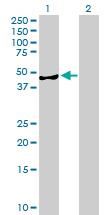 Western blot - AMDHD2 antibody (ab89209)