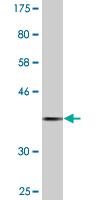 Western blot - Prolactin Receptor antibody (ab89215)