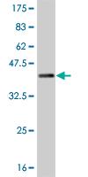 Western blot - SUPT5H antibody (ab89219)