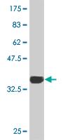Western blot - Tbx3 antibody (ab89220)