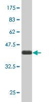 Western blot - NCOA4 antibody (ab89222)