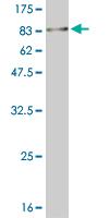 Western blot - MNK1 antibody (ab89223)