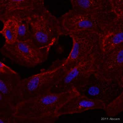 Immunocytochemistry/ Immunofluorescence - Axl antibody [MM0098-2N33] (ab89224)