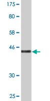 Western blot - ZNHIT3 antibody (ab89226)