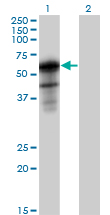 Western blot - SH2B antibody (ab89230)