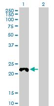 Western blot - COX4NB antibody (ab89239)