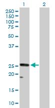 Western blot - CACNG1 antibody (ab89240)