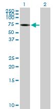 Western blot - ALPPL2 antibody (ab89243)