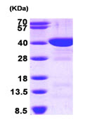 SDS-PAGE - FBP1 protein (His tag) (ab89244)