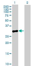 Western blot - MPPED2 antibody (ab89245)