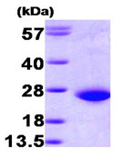 SDS-PAGE - Rac1 protein (His tag) (ab89246)